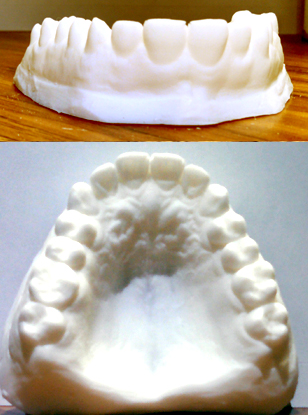 TEETH UPPER SET 4