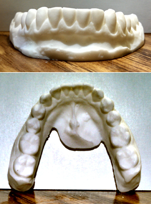 TEETH LOWER SET 1