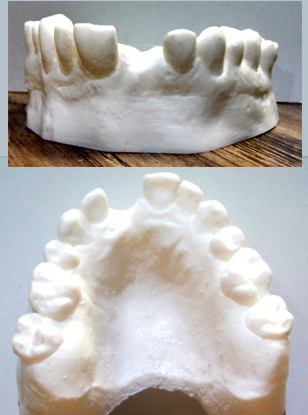 Teeth Upper Set Image 2