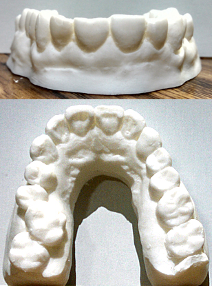 Teeth Upper set 2 Image